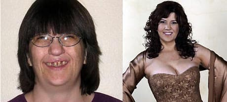 Abc Extreme Plastic Surgery Makeover Before And After photo - 1