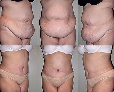 Abdominal Plastic Surgery Before And After photo - 1