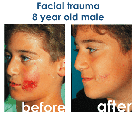 Acne Plastic Surgery Before After photo - 1