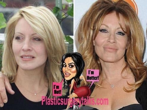 Actor Plastic Surgery Before After photo - 1