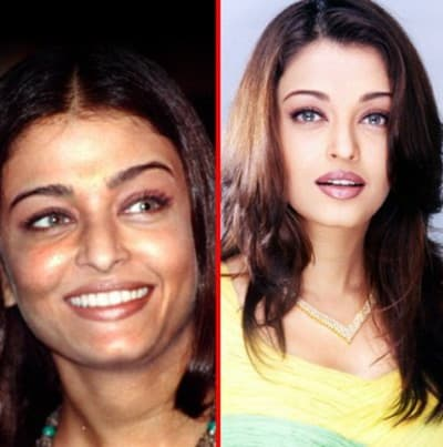 Actress Plastic Surgery Before And After photo - 1