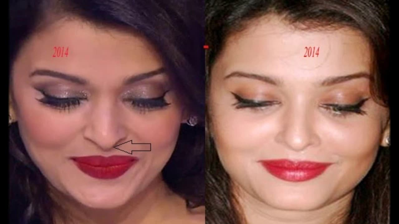 Aishwarya Before After Plastic Surgery photo - 1