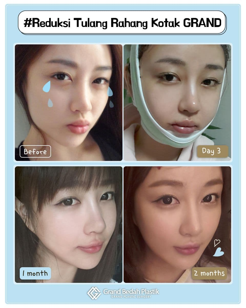 Aja Before And After Plastic Surgery photo - 1