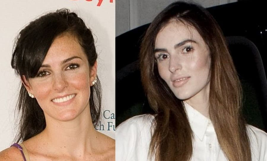 Ali Plastic Surgery Before And After photo - 1