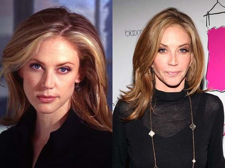 Ally Walker Plastic Surgery Before And After photo - 1