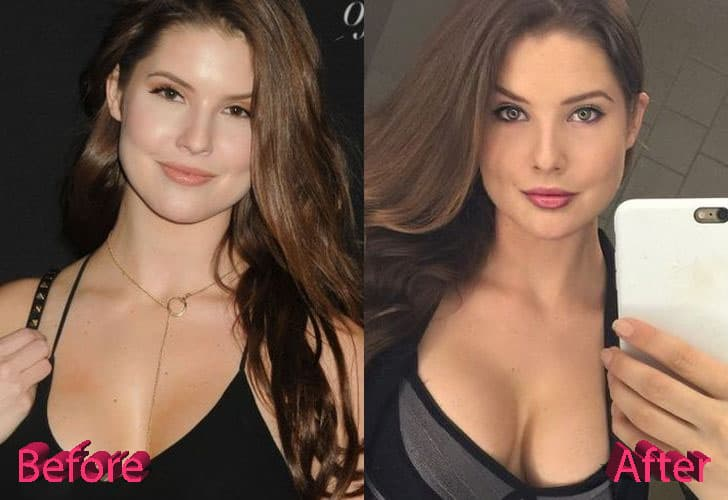 Amanda Cerny Plastic Surgery Before And After photo - 1