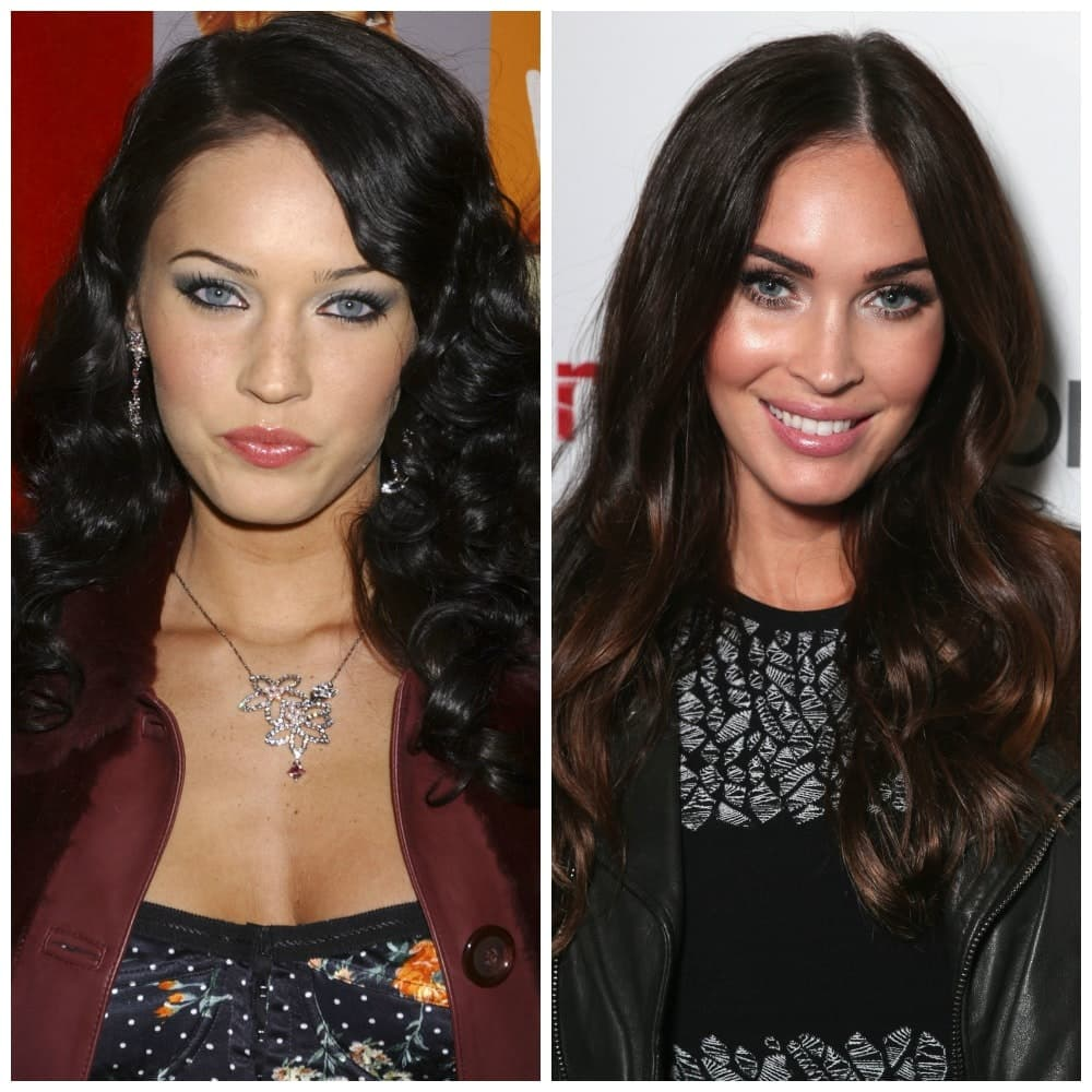 Amazing Plastic Surgery Before An Dafter photo - 1