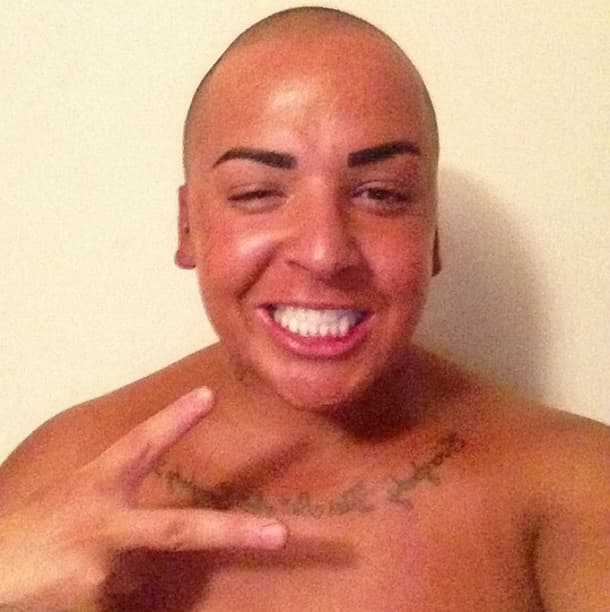 Amber Rose Before And Fter Plastic Surgery photo - 1
