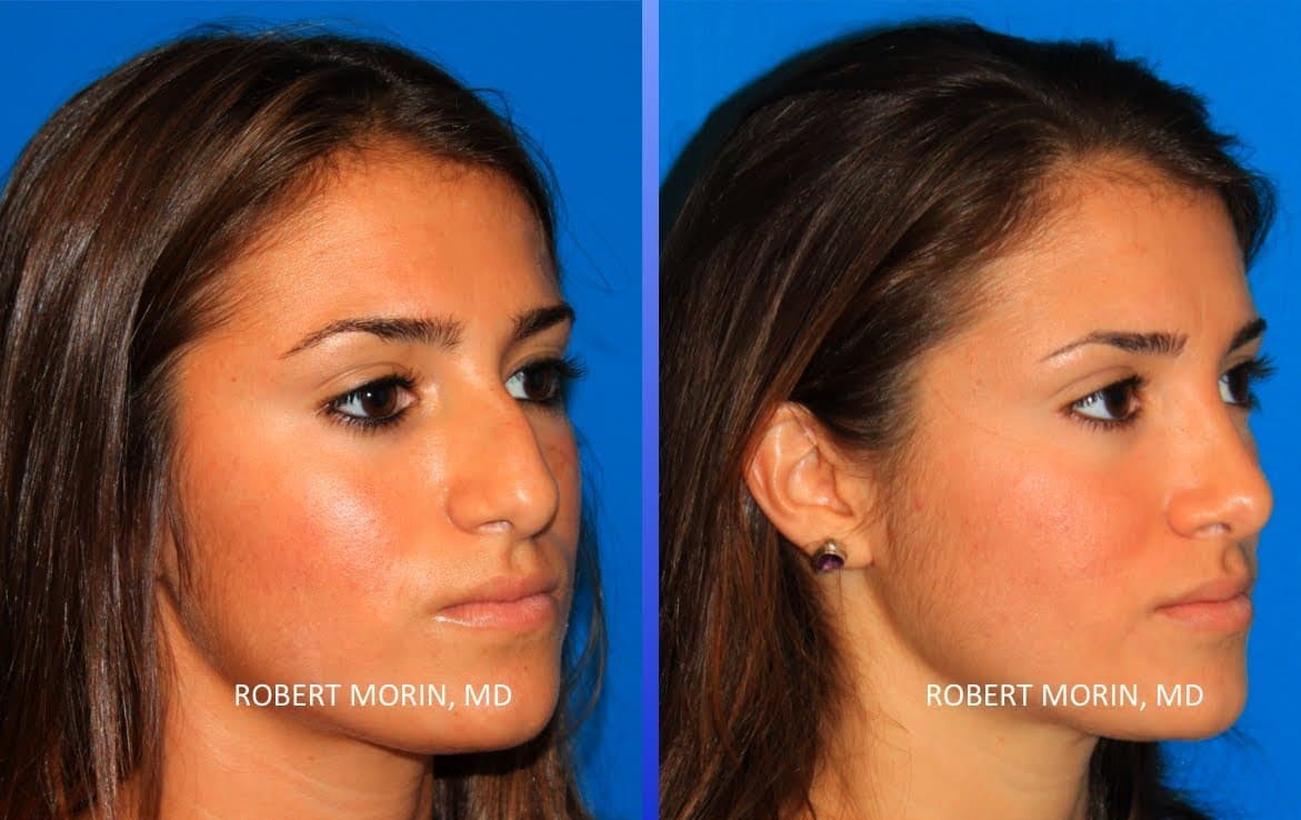 American Women Before Plastic Surgery photo - 1