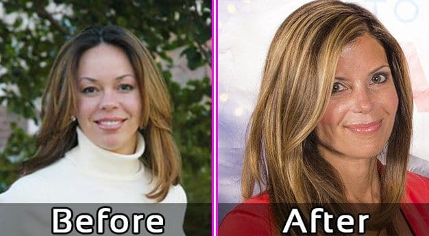Amie Yancey Plastic Surgery Before And After photo - 1