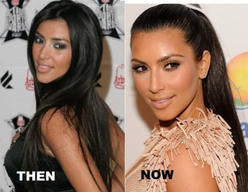 Amrezy Before And After Plastic Surgery photo - 1