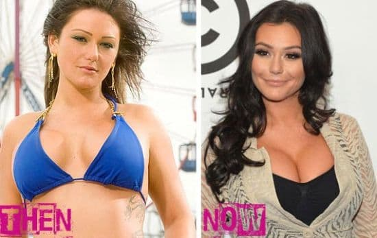 Anahi Before And After Plastic Surgery photo - 1