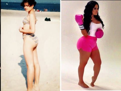 Angel Brinks Before and after Surgery photo - 1