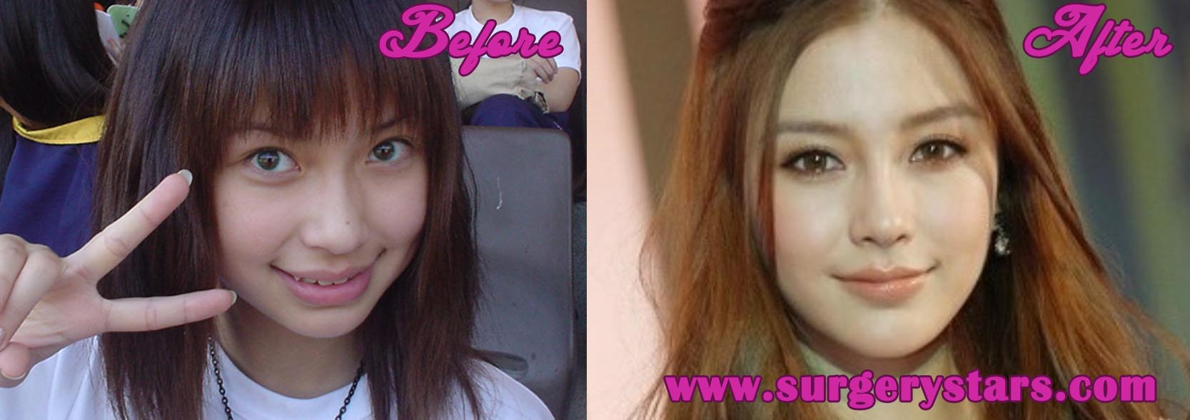 Angelababy Before Plastic Surgery photo - 1