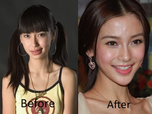 Angelababy Plastic Surgery Before After photo - 1