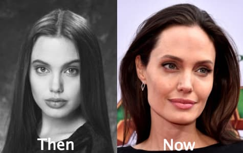 Angelina Jolie Plastic Surgery Before photo - 1