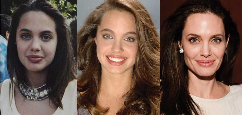 Angeline Jolie Before Plastic Surgery photo - 1
