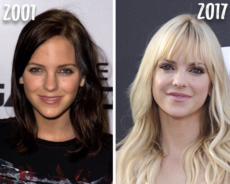 Anna Faris Before And After Plastic Surgery photo - 1