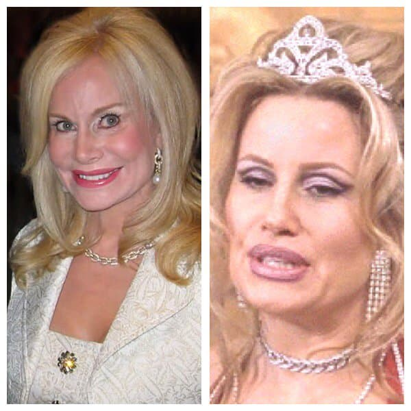 Annabel Bowlen Plastic Surgery Before And After Images photo - 1