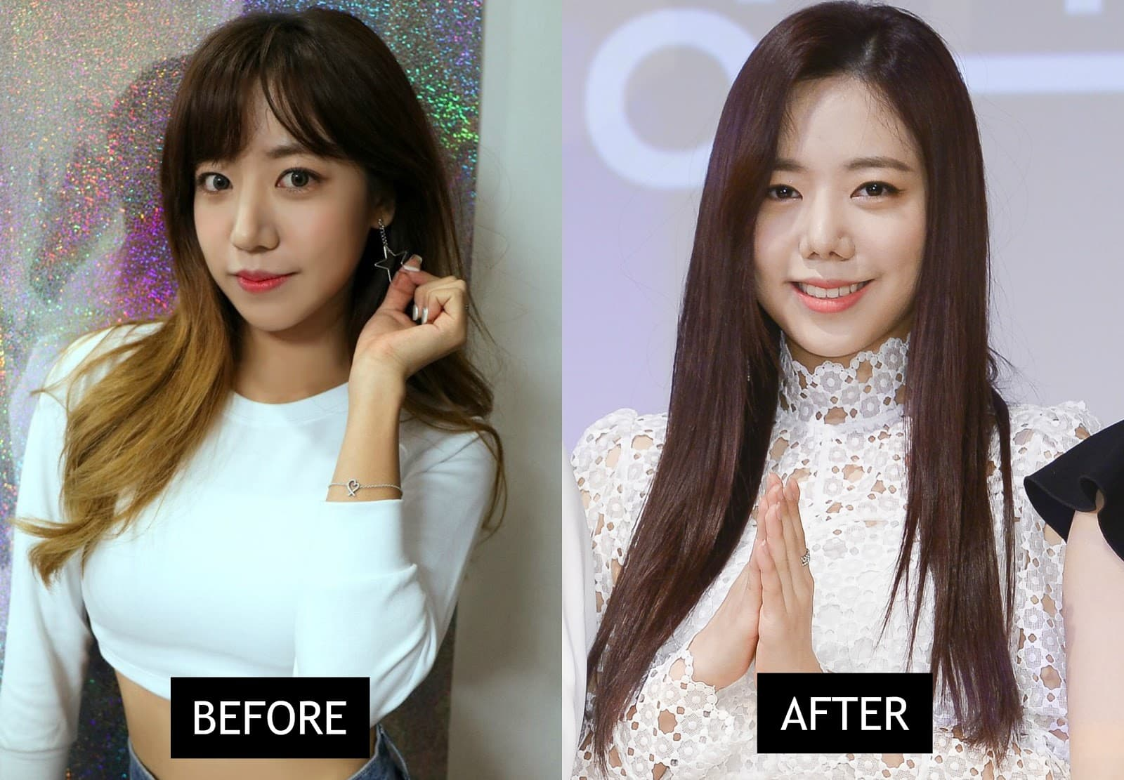 Apink Members Plastic Surgery Before And After photo - 1