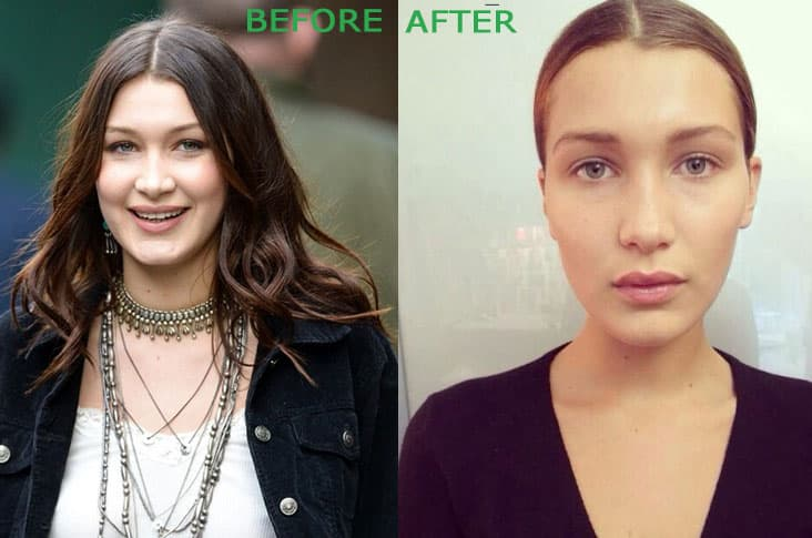 Ariana Grande Plastic Surgery Before After photo - 1