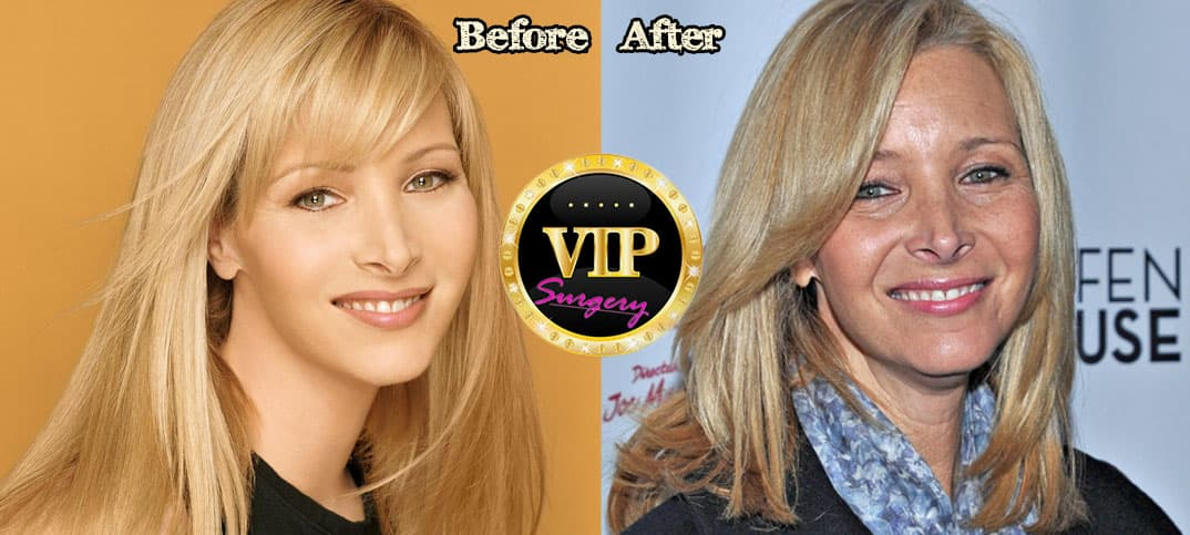 Ashley Tisdale Before And After Plastic Surgery photo - 1