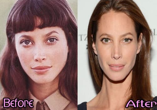 Asian Celebrity Plastic Surgery Before And After photo - 1