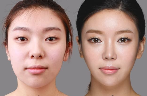 Asian Eye Plastic Surgery Before And After photo - 1
