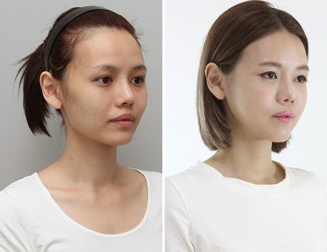 Aspyn Plastic Surgery Before And After photo - 1