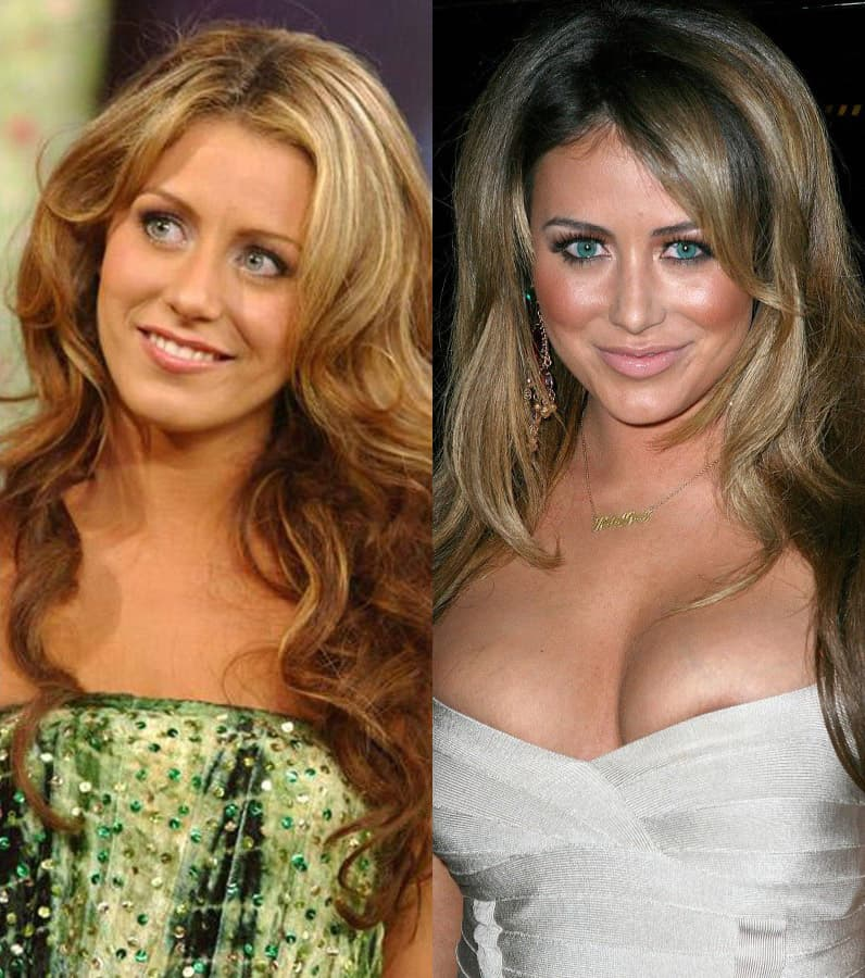 Aubrey O Day Before And After Plastic Surgery photo - 1