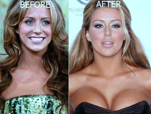 Aubrey O Day Plastic Surgery Before And After photo - 1