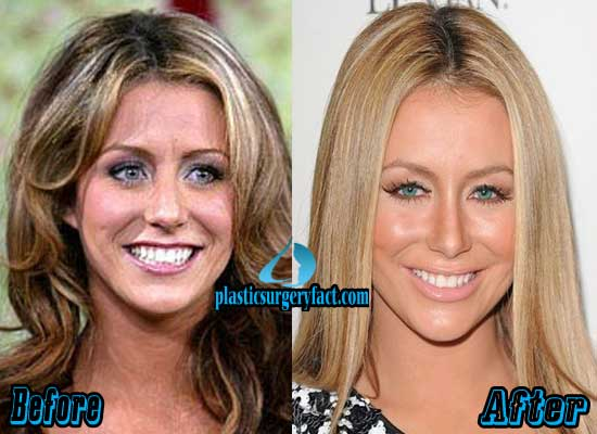 Aubrey Oday Before Plastic Surgery photo - 1
