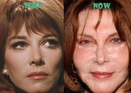 Awful Plastic Surgery Before And After photo - 1