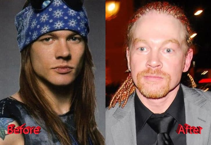 Axl Rose Before And After Plastic Surgery photo - 1