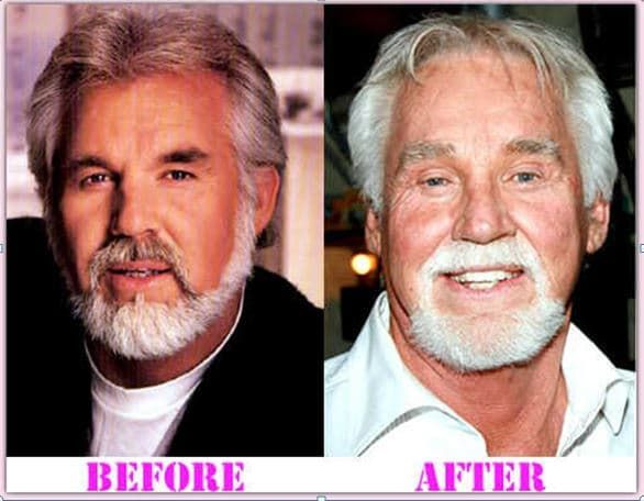 Bad Celeb Plastic Surgery Before After photo - 1