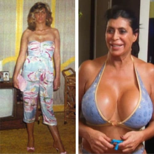 Bad Plastic Surgery Celebrities Before And Afters photo - 1