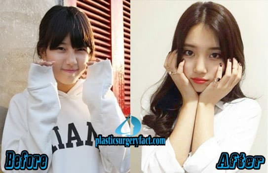 Bae Suzy Plastic Surgery Before And After photo - 1