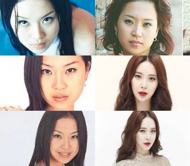 Baek Z Young Before Plastic Surgery photo - 1
