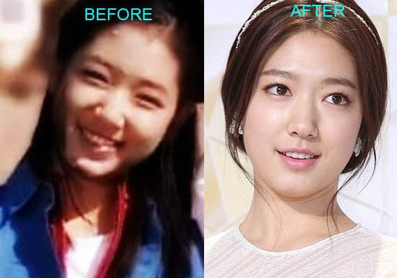Baek Z Young Plastic Surgery Before photo - 1