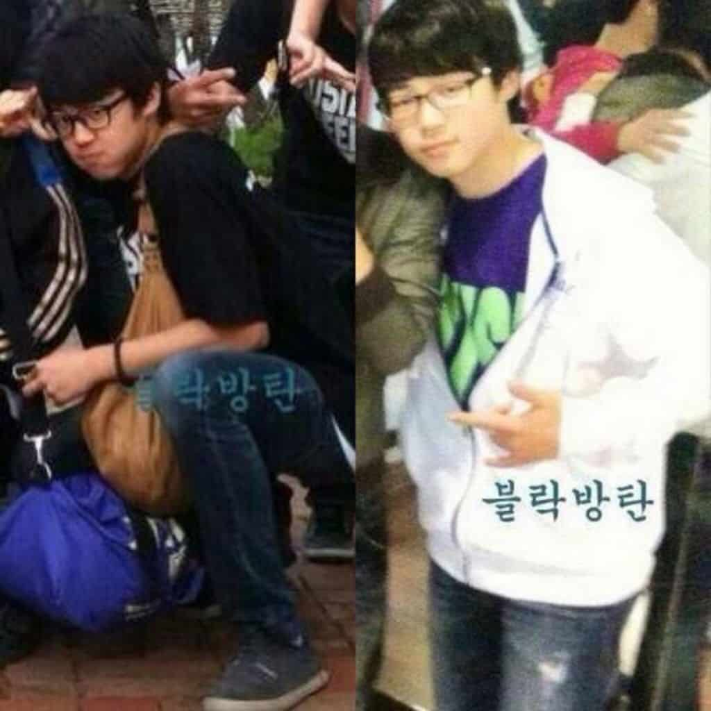 Bangtan Boys Plastic Surgery Before And After photo - 1