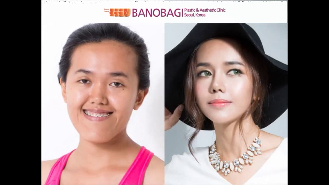 Banobagi Plastic Surgery Before And After photo - 1