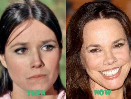 Barbara Hershey Plastic Surgery Before And After photo - 1