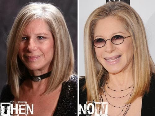 Barbra Streisand Plastic Surgery Before After photo - 1