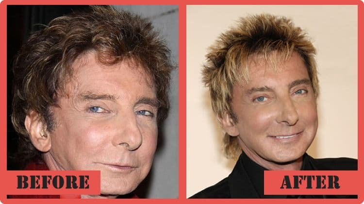 Barry Manilow Plastic Surgery Before And After photo - 1