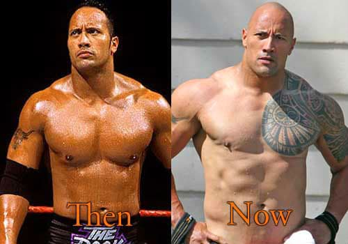 Batista Plastic Surgery Before And After photo - 1