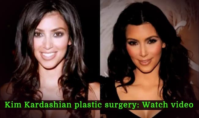 Before After Photos Kim Kardashian Plastic Surgery photo - 1