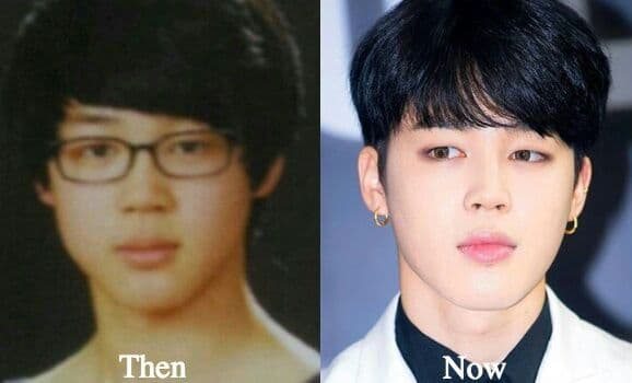 Before After Plastic Surgery App Korean photo - 1