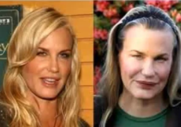 Before After Plastic Surgery Celebrity photo - 1