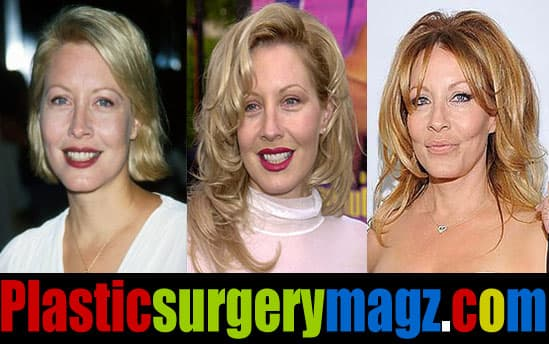 Before After Plastic Surgery Face photo - 1