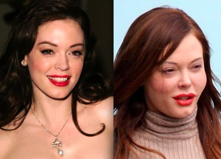 Before After Plastic Surgery Rose Mcgowan photo - 1